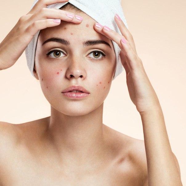 điều trị mụn cùng http://hoasenbeauty.com/