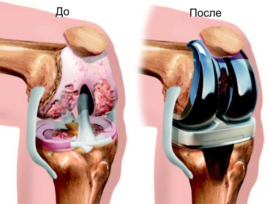 Замена коленного сустава, цена типы эндопротезов тазрбедренного сустава