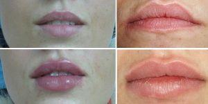 Гиалуроновая кислота для лица отзывы инъекции эффект