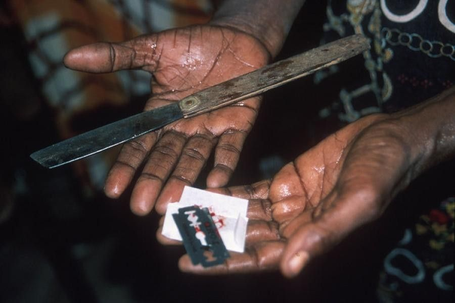 860dc61bd140 Женское обрезание что это. Мужское обрезание. Вред женского обрезания.