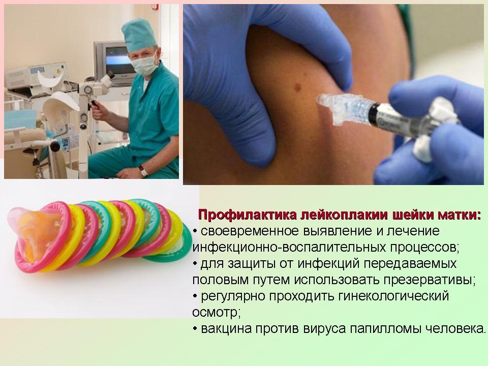 Народниє методи лечения дистрофии вульви