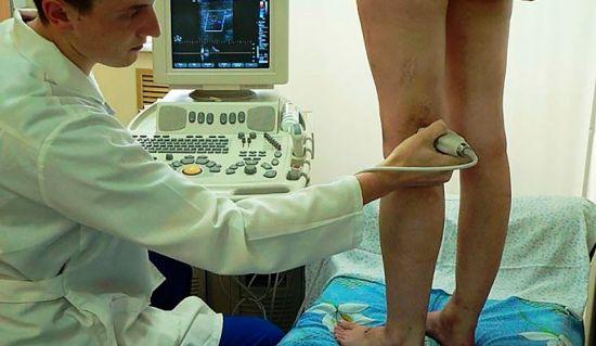 Дуплексное сканирование сосудов нижних конечностей