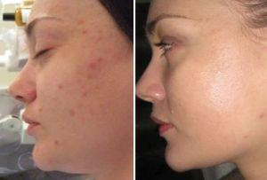 Механическая чистка лица до и после