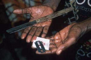 Женское обрезание что это фото