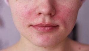Кожная аллергия: причины и симптомы