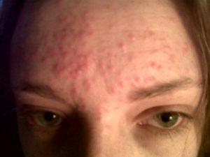 высыпания, аллергия