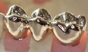 Напыление зубов, коронок и мостов
