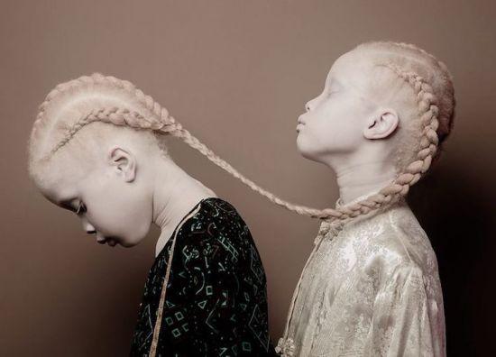 Альбинизм и его плачевные последствия
