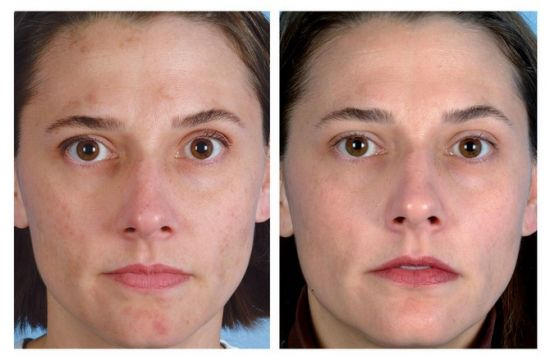 Ультразвуковая чистка лица – особенности