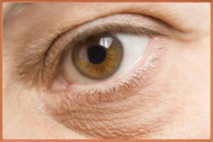 Жировая грыжа под глазами – как избавиться?