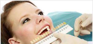 Отбеливание зубов: когда необходимо обратиться за помощью?