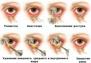 Удаление мешков под глазами