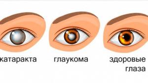 Глазные заболевания. Что нужно знать