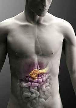 Как вовремя определить рак поджелудочной железы