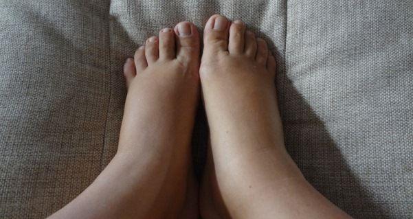 Отеки на ногах: основные причины