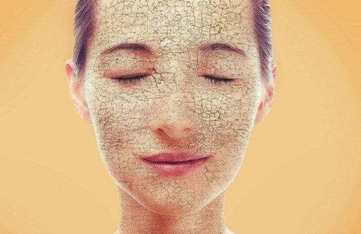 Сухая кожа лица. Особенности ухода