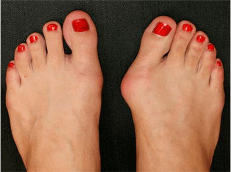 Нallux valgus или как избавиться от шишки на большом пальце ноги
