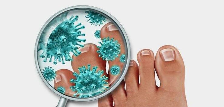 Заболевание грибок